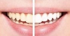 Use a little toothpaste, mix in one teaspoon baking soda plus one teaspoon of hy. Zoom Whitening, Best Teeth Whitening, White Smile, Dental Services, Beauty Spa, Cosmetic Dentistry, Baking Soda, The Cure, Dental