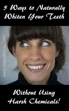 5 Easy Ways To Naturally Whiten Your Teeth  :)