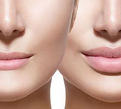 Enjoy looking your best with the help of facial fillers and cosmetic injections from The K Spa in Atlanta, GA. We offer bruise-free facial fillers that give you excellent results without the noticeable injection bruising. Facial Fillers, Botox Fillers, Dermal Fillers, Lip Fillers, Skin Care Regimen, Skin Care Tips, Relleno Facial, Hyaluron Filler, Deathstroke