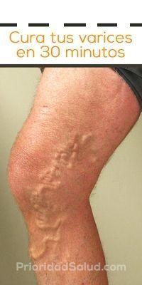 Remedios para eliminar las varices de las piernas sin ejercicios