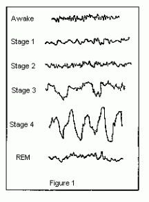 brain activity during sleep Sleep and the brain - brain activity during sleep cycles fluctuates between rem sleep and two slower patterns learn about brain activity.