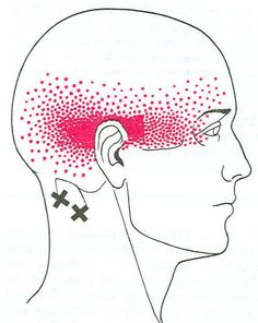 myofascial trigger points referred pain areas - Google Search
