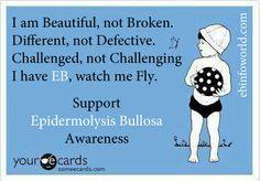 Someecards for Epidermolysis Bullosa Awareness