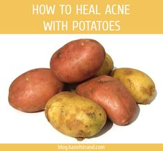 How to Heal Acne With Potatoes