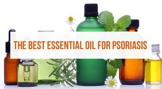 In this article, you'll learn about how the best essential oil for psoriasis can help you- including the best ways to use it for your skin. Essential Oils For Psoriasis, Best Essential Oils, Diy Beauty Projects, Your Skin, Essentials, Herbs, Skin Care, Good Things