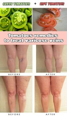 Tomatoes remedies to treat varicose veins