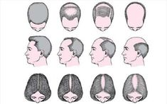 Get Best Homeopathic Treatment For and Alopecia Areata though Aura Homeopathy Online Clinic India. At Aura We uses Best Homeopathic Medicine for Hair loss and other scald ailments. Home Remedies For Baldness, Home Remedies For Hair, Hair Loss Remedies, Hair Loss Causes, Prevent Hair Loss, Prp Hair, Reverse Hair Loss, Hair Regrowth, Hair Follicles