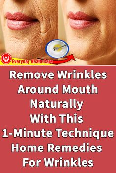 It only takes 1 minute to remove wrinkles from the mouth Natural Wrinkle Remedies, Skin Care Remedies, Home Remedies For Wrinkles, At Home Face Mask, Face Wrinkles, Wrinkle Remover, Face Skin Care, How To Remove, Rid