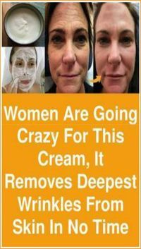 Women are going crazy for this cream, It removes deepest wrinkles from skin in n., Beauty, Women are going crazy for this cream, It removes deepest wrinkles from skin in no time The application of this cream will do all beauty treatments lik. Beauty Care, Beauty Skin, Beauty Hacks, Beauty Tips, Diy Beauty, Beauty Products, Face Beauty, Homemade Beauty, Facial Products