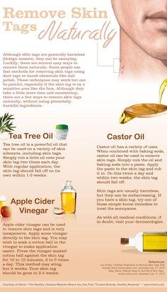 Ways to Remove Skin Tags Naturally (Infographic)