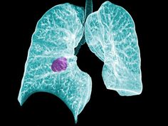 Fight Liver & Cancer Of The Lung Nutritional Basics Liver Cancer, Lung Cancer, Lunges, Cardio, Anatomy, Artistic Anatomy