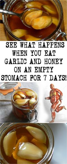 SEE WHAT HAPPENS WHEN YOU EAT GARLIC AND HONEY ON AN EMPTY STOMACH FOR 7 DAYS! Herbal Remedies, Health Remedies, Cold Remedies, Healthy Tips, Healthy Recipes, Garlic Benefits, Balanced Diet Plan, Natural Detox, Natural Healing