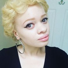 Albinism is a congenital disorder that removes pigment from the skin, hair and eyes. It occurs worldwide but has particularly high occurrences among certain African ethnic groups; The prevalence of… Albino African, Albino Girl, Police, Beautiful People, Beautiful Women, Afro Style, Beautiful Black Girl, True Beauty, Bellisima