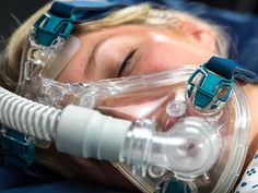 Insomnia Remedies Close-up of a woman wearing a CPAP mask for sleep apnea. - Learn about the host of comorbidity in fibromyalgia and chronic fatigue syndrome. Home Remedies For Snoring, Sleep Apnea Remedies, Insomnia Remedies, What Causes Sleep Apnea, Causes Of Sleep Apnea, Sleep Apnea Mask, Circadian Rhythm Sleep Disorder, Natural Sleeping Pills, How To Stop Snoring
