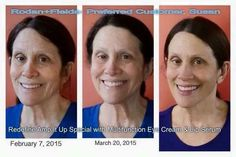 ¡¡¡Impresionante!!! ¿Cuántos años se quito de encima?  El uso constante + productos clínicamente probados que funcionan = RESULTADOS ALUCINANTES. Solo con #RodanandFields ¿Quieres ser el próximo con estos resultados?
