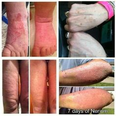 Not just for beauty, look at Nerium's results for other skin issues. http://www.suzanwells.nerium.com