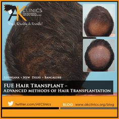 #FUE #HairTransplant - Advanced #methods of Hair Transplantation