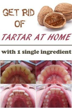 Here's the method by which you can get rid of them... Get rid of the tartar with a single ingredient at home: - 30 grams nutshells - 200 ml of water Put the nutshells in a pot with water. Boil the mixture for 20 minutes. When cool, strain, then soak your toothbrush in this liquid. Brush your teeth for 5 minutes. Repeat the treatment 3 times a day and approximately 10-15 days plaque should disappear.