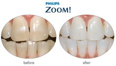 Zoom before and after. It lasts from months (better than whitening strips)! Teeth whitening at Third Street Dental Vancouver. Zoom Teeth Whitening, Teeth Whitening Procedure, Dental Teeth, Dental Care, Healthy Teeth, Cosmetic Dentistry, Oral Health, Cosmetics, Third Street
