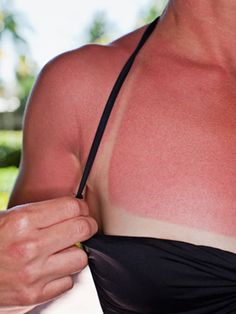 Summer Skin Care Tips including: Sunburns, Mosquito bites, bikini bumps, rashes and chafing, Poison Ivy.