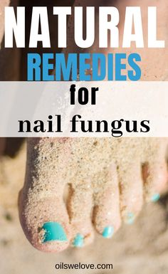 What Are The Best Essential Oils For Nail Fungus? Toenail Fungus Remedies, Eczema Remedies, Skin Care Remedies, Natural Remedies, Aztec Nails, Chevron Nails, Toe Fungus, Fungus Toenails, Nail Oil