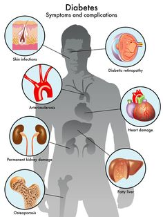 Diabetes is a disease where a person's body is unable to properly store and use glucose. Glucose is a form of sugar and if someone has diabetes their glucose levels will often rise too high. There are basically two different types of diabetes including. Signs Of Diabetes, Types Of Diabetes, Prevent Diabetes, Reversing Diabetes, Diabetic Breakfast, Diabetic Snacks, Diabetic Tips, Pre Diabetic, La Diabetes Mellitus