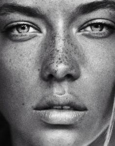 Freckles #freckles