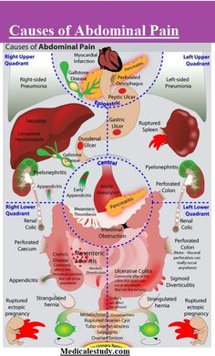 causes-of-abdominal-pain-2