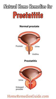 Natural Home Remedies for Prostatitis
