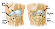 Débarrassez-vous des douleurs articulaires, des douleurs de dos et de genoux en une semaine avec ce remède miraculeux.