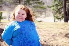 Texas girl has surgery to stop rapid weight gain due to rare medical condition
