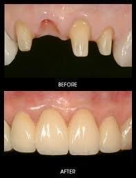 provides Dental implants in Glasgow. is NHS Dentist in Glasgow providing dental implants treatments. Tooth Extraction Care, Tooth Extraction Aftercare, Implants Dentaires, Dental Implants, Dental Hygienist, Dental Health, Dental Care, Oral Health, Invisalign