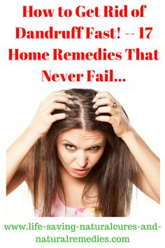 Best Natural Remedies & Home Treatment Options for Dandruff & Flaky Scalp. How To Cure Dandruff, Hair Mask For Dandruff, Home Remedies For Dandruff, Hair Remedies For Growth, Hair Growth, Herbal Cure, Herbal Remedies, Health Remedies, Natural Treatments