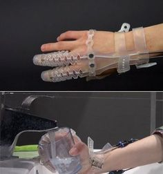 The Exo-Glove Poly (top) fits over the thumb and two fingers of a person's hand and can help them perform simple, but previously impossible, tasks such as filling up a water glass (bottom).