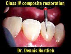 Clinical Case: Class IV composite restoration | Odonto-TV