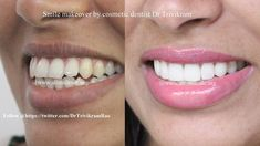Smile makeover by cosmetic dentist Dr Trivikram. Are You Ready for a Smile Makeover? Everyone wants to have a smile that they feel proud to flaunt no matter their age or gender. If you ever wanted a more attractive smile, this is your chance. Restore your smile and confidence with our life enhancing smile makeovers in just 1 week in 3-4 visits .The options range from Instant composite veneers, porcelain veneers to porcelain crowns.