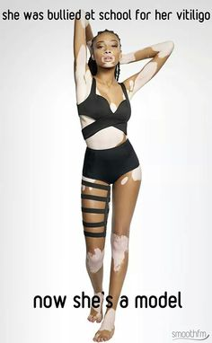 She was bullied at school for her Vitiligo... She lovely, how could you be so harsh to someone so extraordinary?