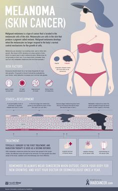 http://www.ihadcancer.com/sites/all/themes/ihc_theme/images/infographics/ihc-melanoma-guide-sm.jpg