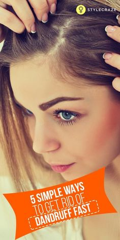 Hair Care Products : Lesser Known Home Remedies To Get Rid Of Dandruff - Haarpflege Schuppen Sleep Hairstyles, Cool Hairstyles, Hairstyle Ideas, Hair Ideas, Healthy Scalp, Healthy Hair, Dandruff Solutions, Getting Rid Of Dandruff, Curly Hair Styles