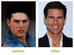 Before - After... :)))