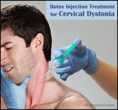 Botox Injection Treatment for Cervical Dystonia or Spasmodic Torticollis