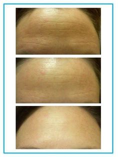 Erase the wrinkles on your forehead with products that at clinically proven to deliver results!