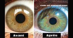 Couleur des yeux : Voici une photo « avant-après » d'un oeil d'une personne. Mais comment a-t-il pu changer de couleur ? Comme vous pouvez le