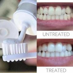 The only product in the industry to go viral! The best of the best in whitening toothpaste. No peroxide or bleach, even safe for kids 2+. Only $20 http://seeingisbelieving.nsproducts.com