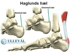 The bane of my existence- Haglund's deformity makes it so hard to work out consistently Haglunds Deformity, Achilles Tendinopathy, Get Healthy, Fun Facts, Health And Beauty, Health Fitness, Medical, Stress, Junk Drawer