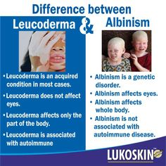 #‎Albinism‬ and ‪#‎Vitiligo‬ are both ‪#‎medical‬ conditions caused due to a defect of pigments in the ‪#‎body‬, but there is a difference between these two disorders.  The key difference between these conditions is that, #Albinism is a ‪#‎congenital‬ disorder characterized by the complete or partial absence of ‪#‎melanin‬ which is the ‪#‎pigment‬ found in the ‪#‎skin‬, ‪#‎hair‬, and ‪#‎eyes‬ while vitiligo is a skin condition characterized by a part of the skin losing the pigment.