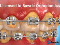Braces and dental decay Dental Humor, Dental Hygienist, Dental Assistant, Dental Implants, Dental World, Dental Life, Dental Health, Oral Health, Dental Braces