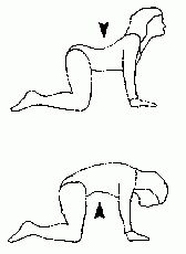 Low Back Exercise Program  Do this every day with my bad back