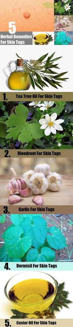 5 Best Herbal Remedies For Skin Tags | http://www.searchhomeremedy.com/5-best-herbal-remedies-for-skin-tags/