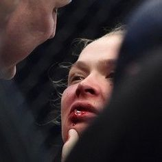 Após ser derrotada por Holly Holman, Ronda terá que passar por plástica nos lábios. (9689)